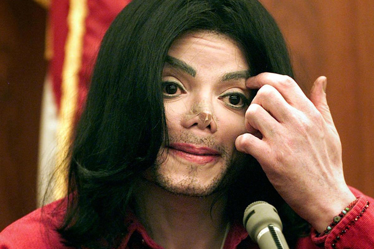 Michael Jackson with a Band-Aid over the spot where his nose used to be