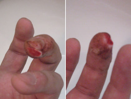 A look at Dave's mutilated finger!