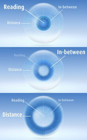 MultiFocal Lens Graphic