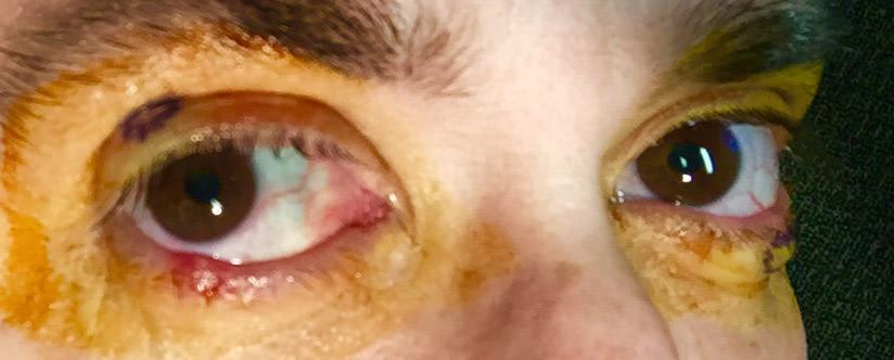 Hurt Eyes