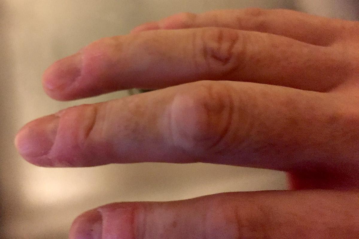 Dave's Vitiligo Hands