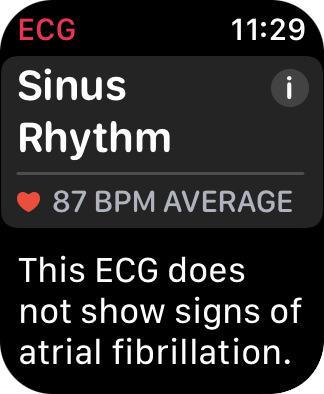 My Apple Watch ECG report.
