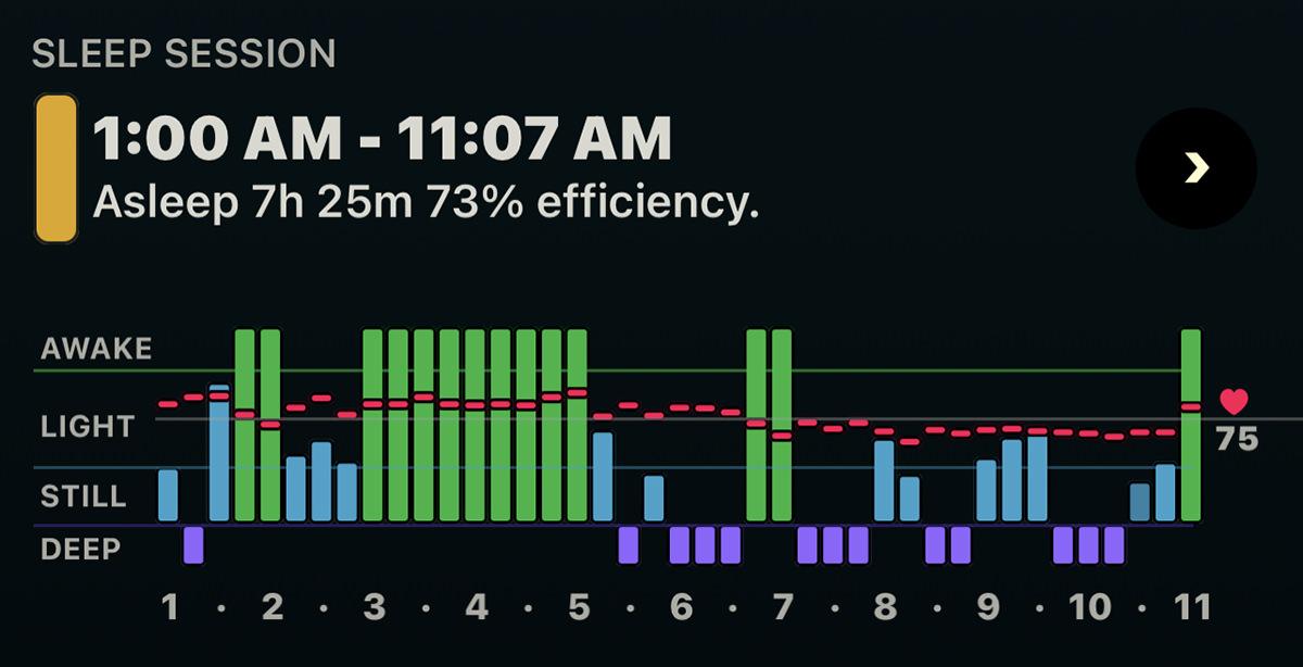 My sleep data graph via the AutoSleep app on my Apple Watch.