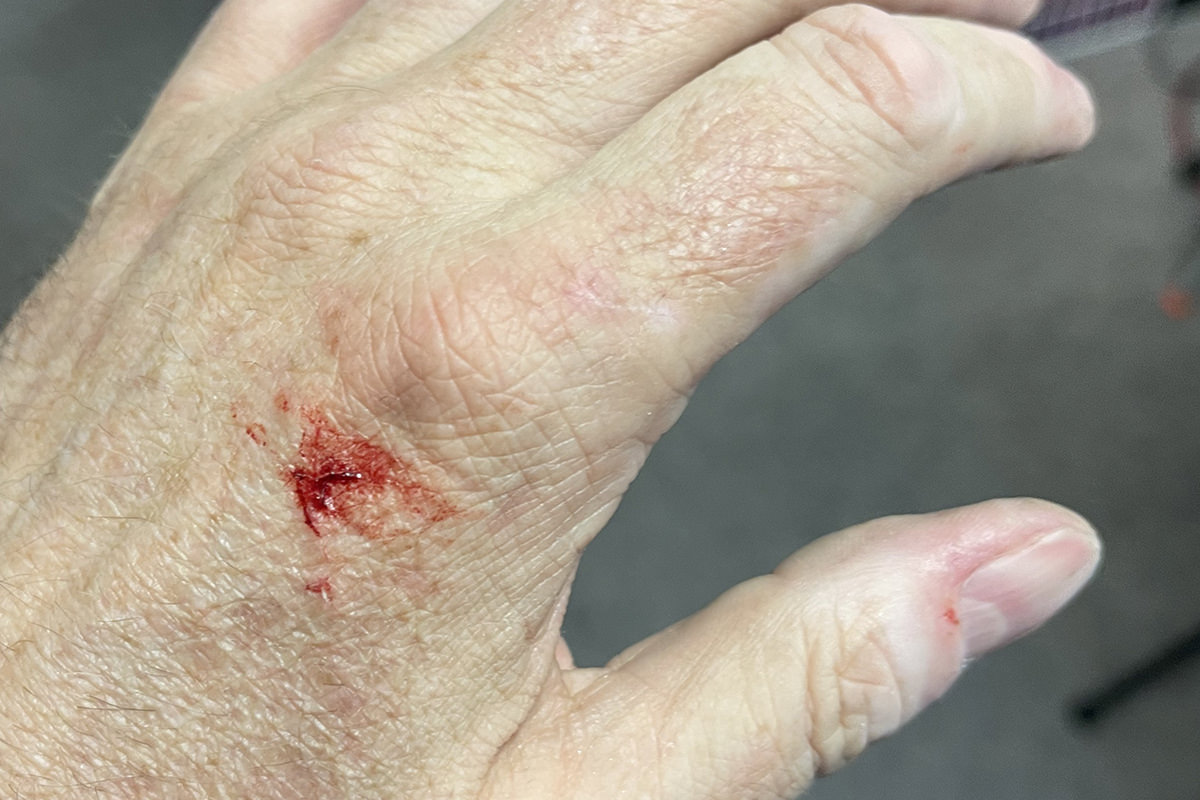 A gash on my left hand.