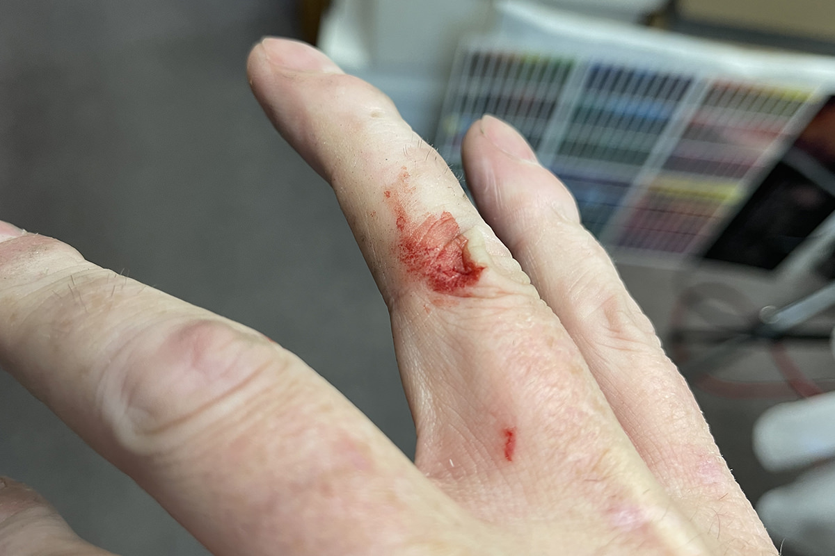 A cut on my right hand.