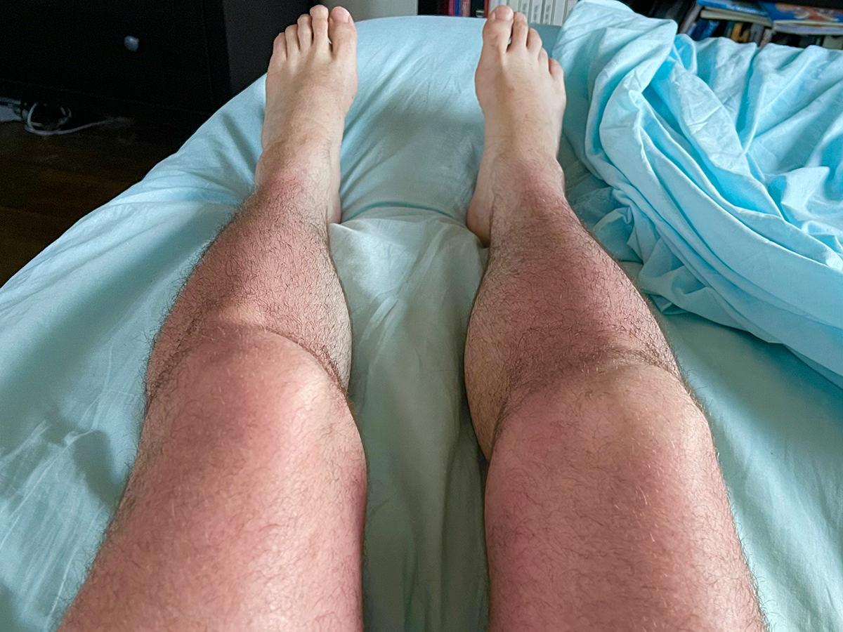 My legs looking beet-red.