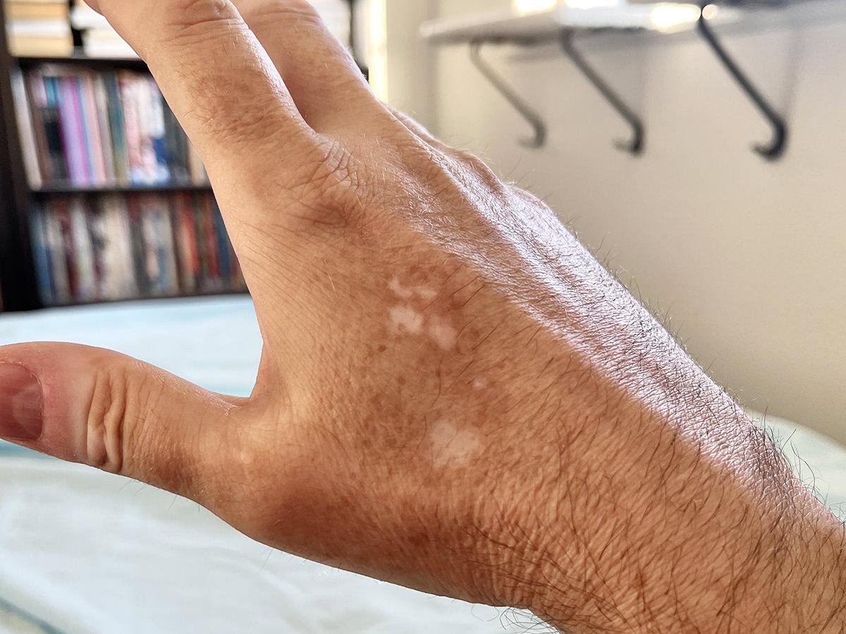 White splotches on my tan hand.